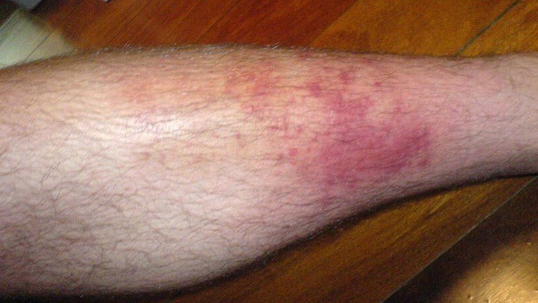 Cellulitis on leg - Owl Pest Control Dublin